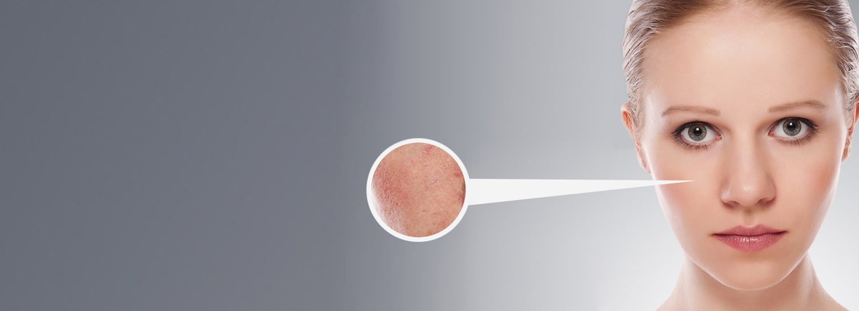 Laser vasculaire en Suisse